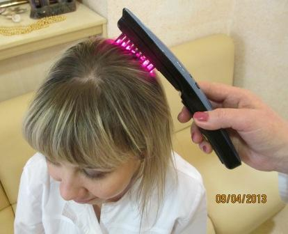 Против выпадения волос для мужчин народными средствами